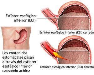 acidez-estomacal