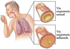 bronquitis-aguda-cronica