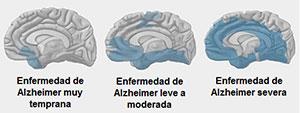 evolucion-alzheimer
