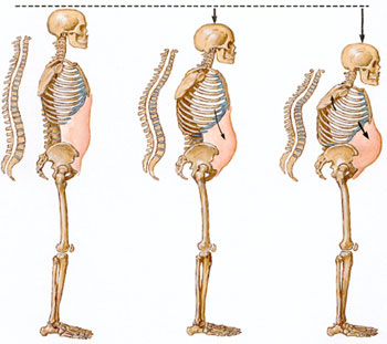 osteoporosis-huesos-columna