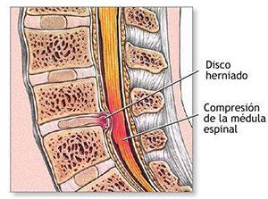 disco-deslizado-hernia