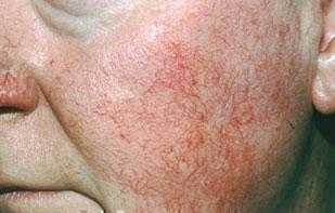 rosacea-tipo-erythematotelangiectatic