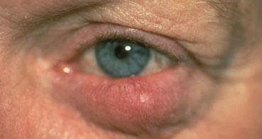 rosacea-tipo-ocular