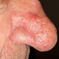rosacea-tipo-phymatous