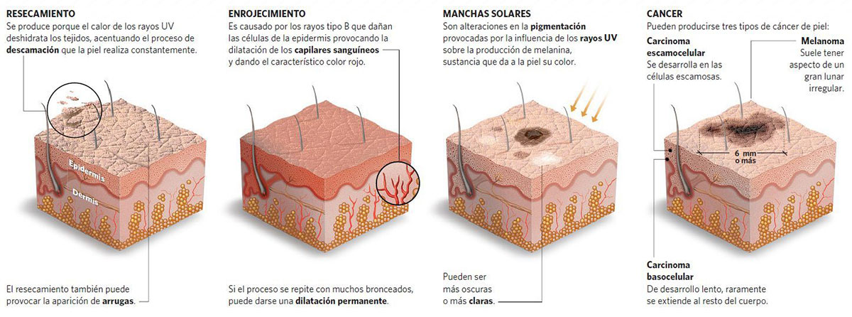 Guia definitiva para diferenciar lunares verrugas y melanoma