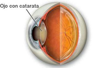 ojo-con-catarata