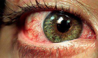 Enrojecimiento de los Ojos
