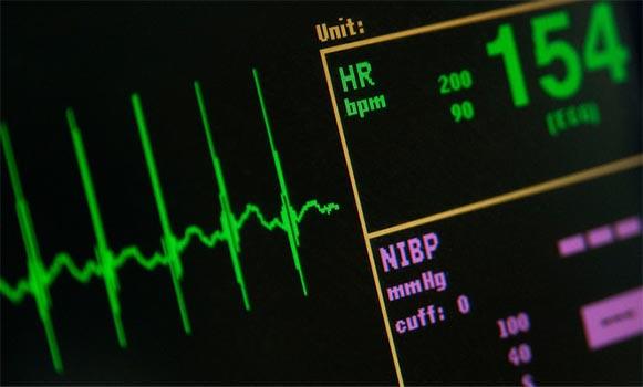 Taquicardia síntomas