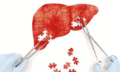 Lesiones en el hígado