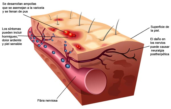 Explicación Herpes Zóster