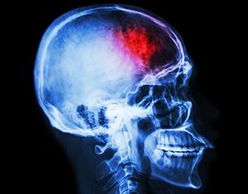 Síntomas derrame cerebral