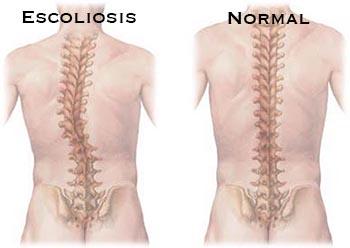 Causas escoliosis