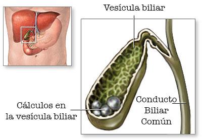 Tipos de cálculos biliares