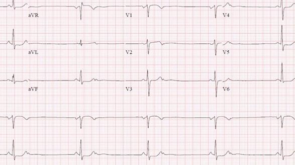 Ralentización del latido del corazón