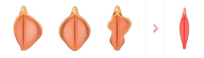 Cirugía Labioplastia
